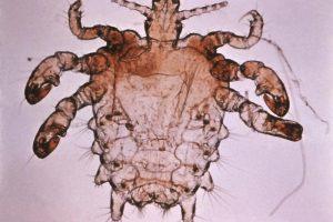 Get rid of crabs